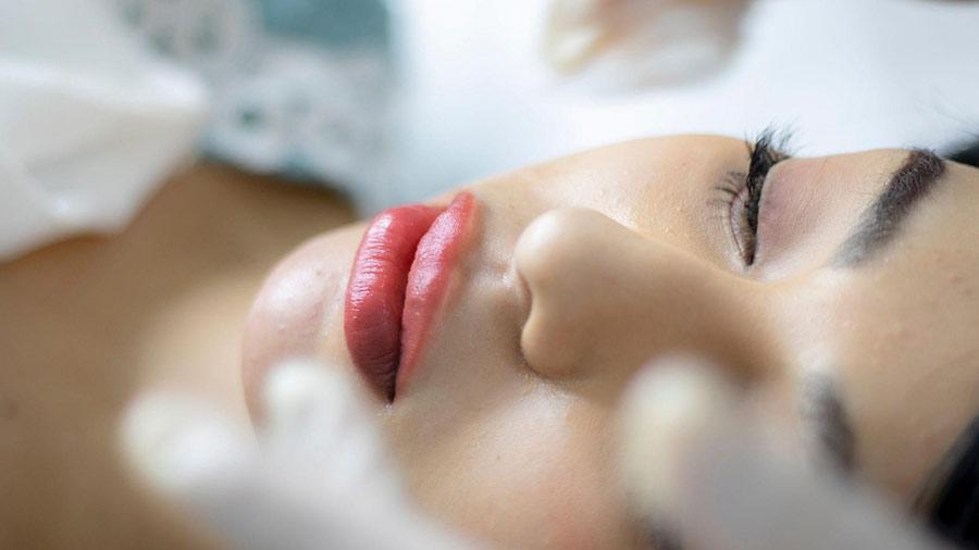 You must properly prepare for a lip filler procedure.